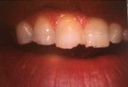 Grinding teeth Gurnee IL