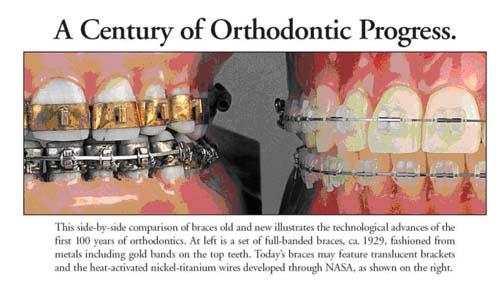 orthodontics evolution gurnee il