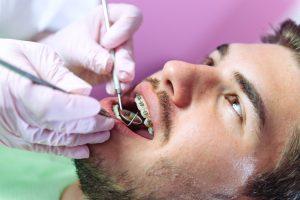 Adult orthodontics Gurnee IL