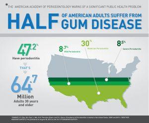 Gum Disease Gurnee IL