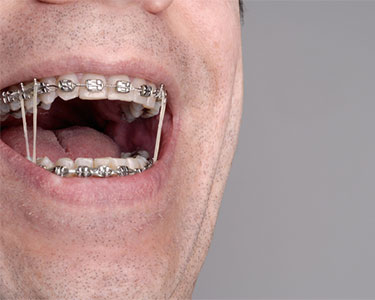 blog-featured-image-elastics-for-braces