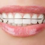 Retainers Honey Orthodontics Gurnee, IL