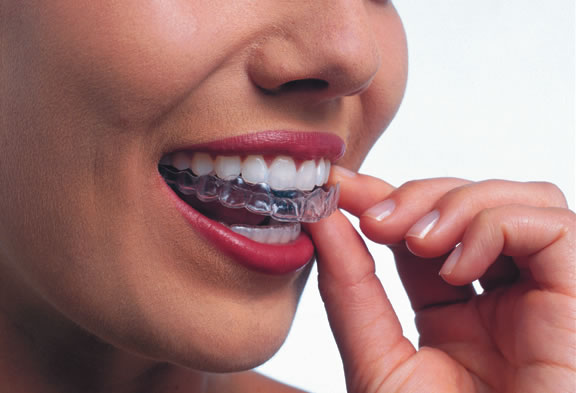 Addressing invisalign myths gurnee il honey orthodontics solutioingenieria Images