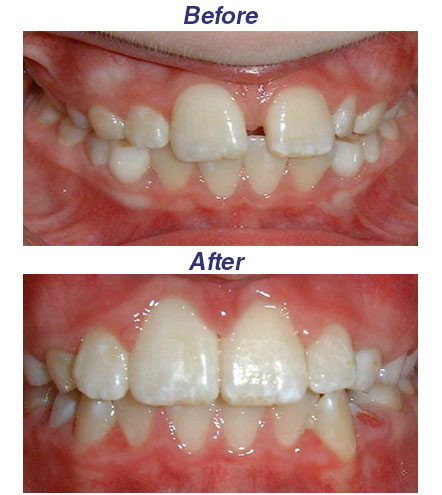 Before and After Gurnee IL 2016 Honey Orthodontics