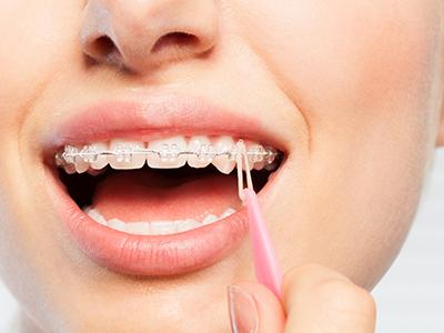 blog-featured-image-elastics-and-orthodontic-treatment