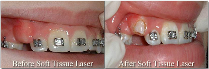 Soft Tissue Laser Honey Orthodontics Gurnee, IL